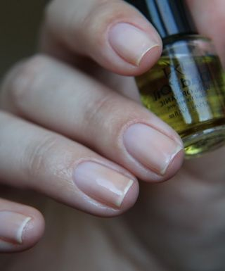 Слоение ногтей: причины и лечение