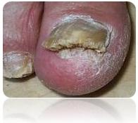 Грибок ногтей на ногах: лечение народными средствами